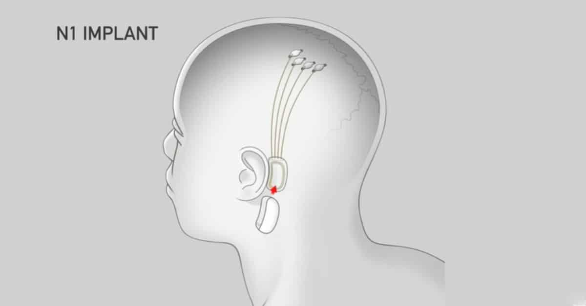 Neuralink gedachtenlezen technologie